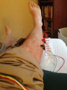 Accupuncture leg
